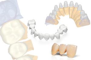 Tecnica CAD CAM: protesi dentale