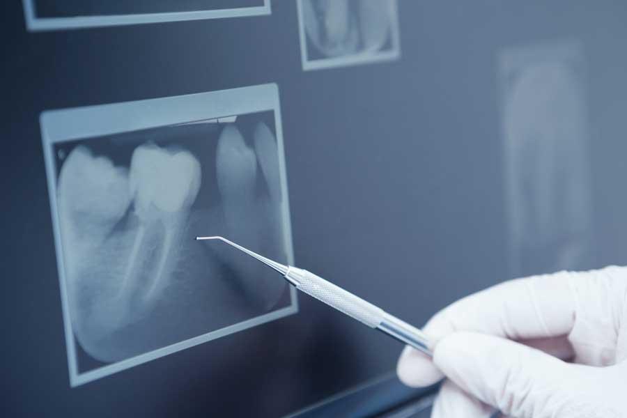 endo-dentalq