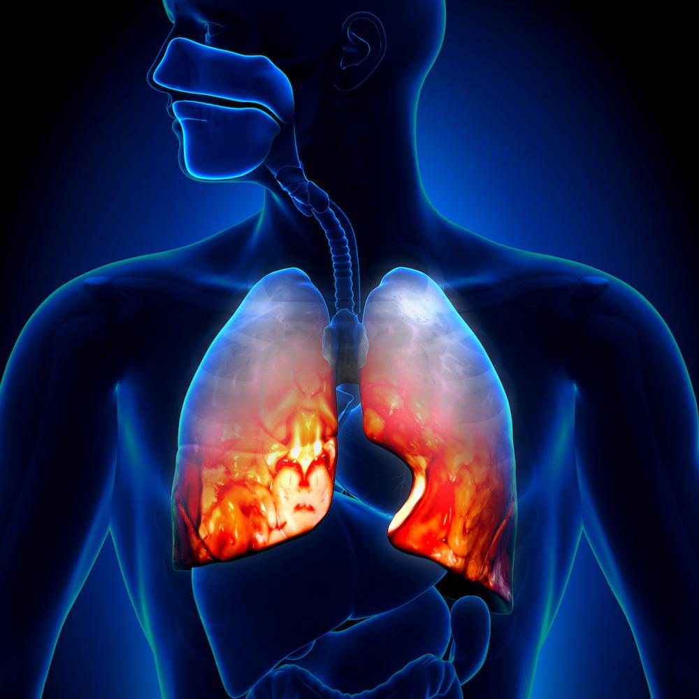 La scarsa igiene orale tra le cause della polmonite
