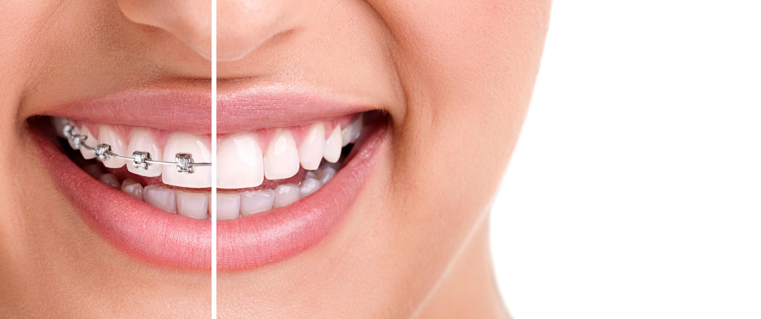 ortodonzia invisibile: sorriso con apparecchio