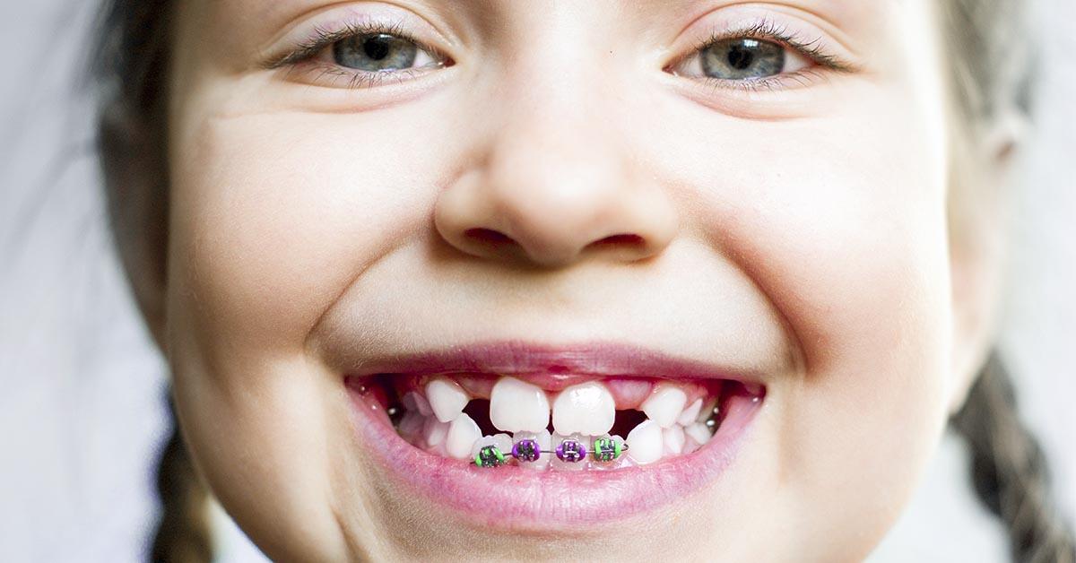 Odontoiatria per bambini | Odontoiatria Q